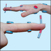 Alternative medicine.  Treatment with magnets. Su jok therapy ( acupuncture ).