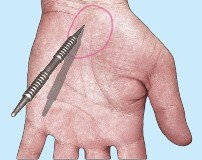 An image of the stomach pain point being found.